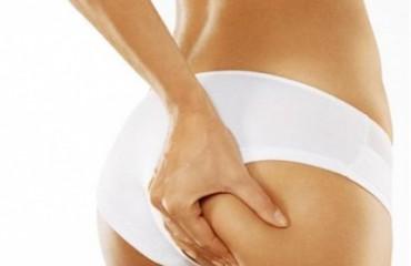 10 привычек, способствующих целлюлиту