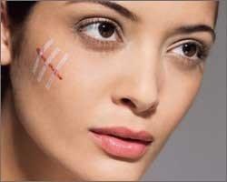 Как избавиться от рубцов на лице