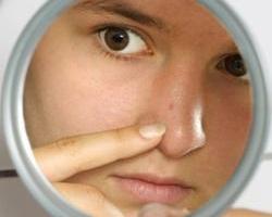 Как избавиться от высыпаний на лице?
