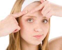 Как проводится эффективное лечение акне?