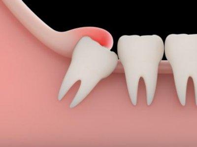 Зубы мудрости – целесообразность удаления